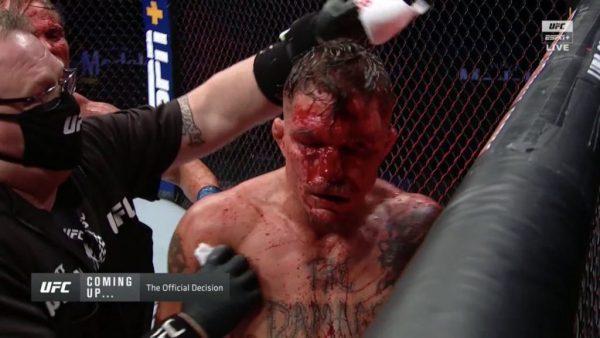 UFC Fight Night 172